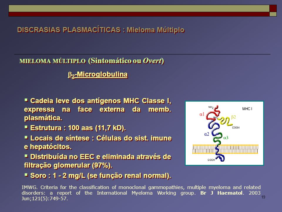 19 DISCRASIAS PLASMACÍTICAS : Mieloma Múltiplo IMWG. Criteria for the classification of monoclonal gammopathies, multiple myeloma and related disorder