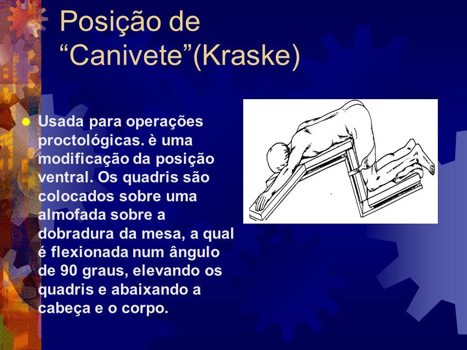 """Posição de """"Canivete""""(Kraske)  Usada para operações proctológicas. è uma modificação da posição ventral. Os quadris são colocados sobre uma almofada"""