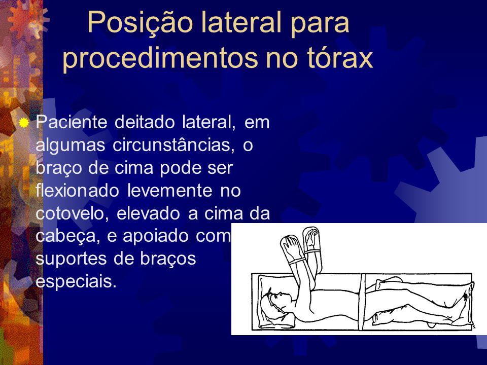 Posição lateral para procedimentos no tórax  Paciente deitado lateral, em algumas circunstâncias, o braço de cima pode ser flexionado levemente no co