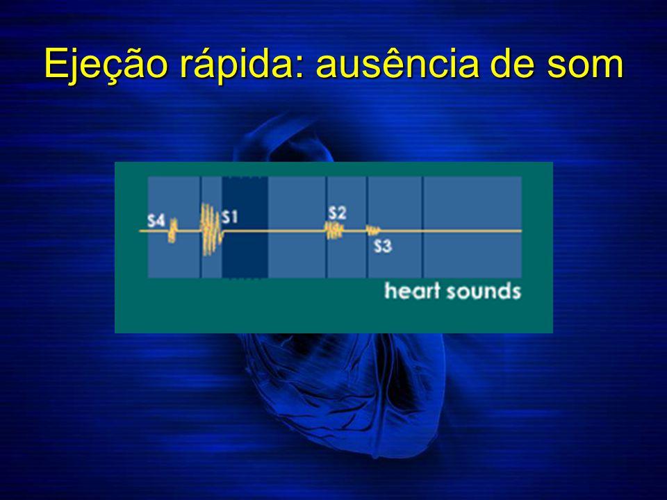 Ejeção rápida: ausência de som