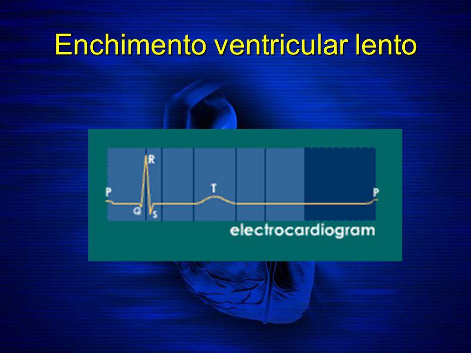 Enchimento ventricular lento: pressões e volumes