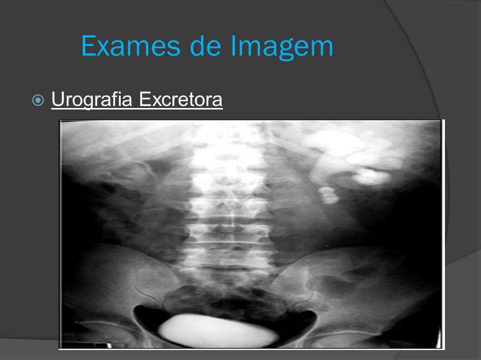  Urografia Excretora Exames de Imagem