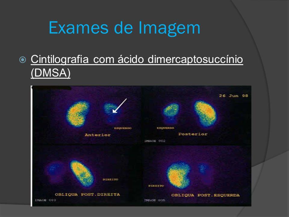  Cintilografia com ácido dimercaptosuccínio (DMSA) Exames de Imagem