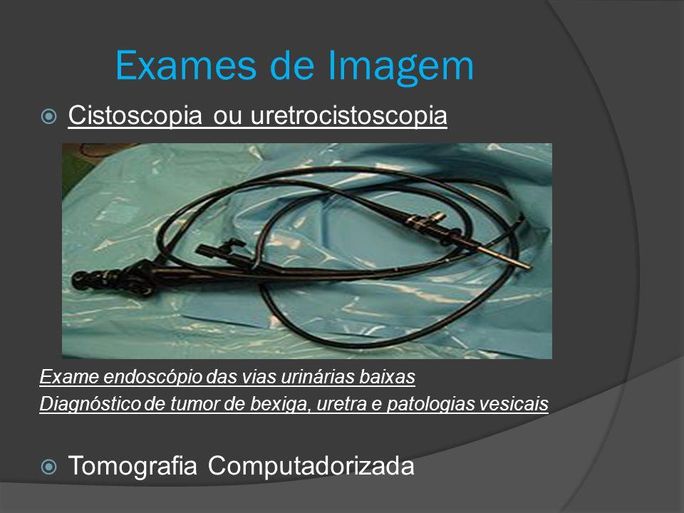  Cistoscopia ou uretrocistoscopia Exame endoscópio das vias urinárias baixas Diagnóstico de tumor de bexiga, uretra e patologias vesicais  Tomografi