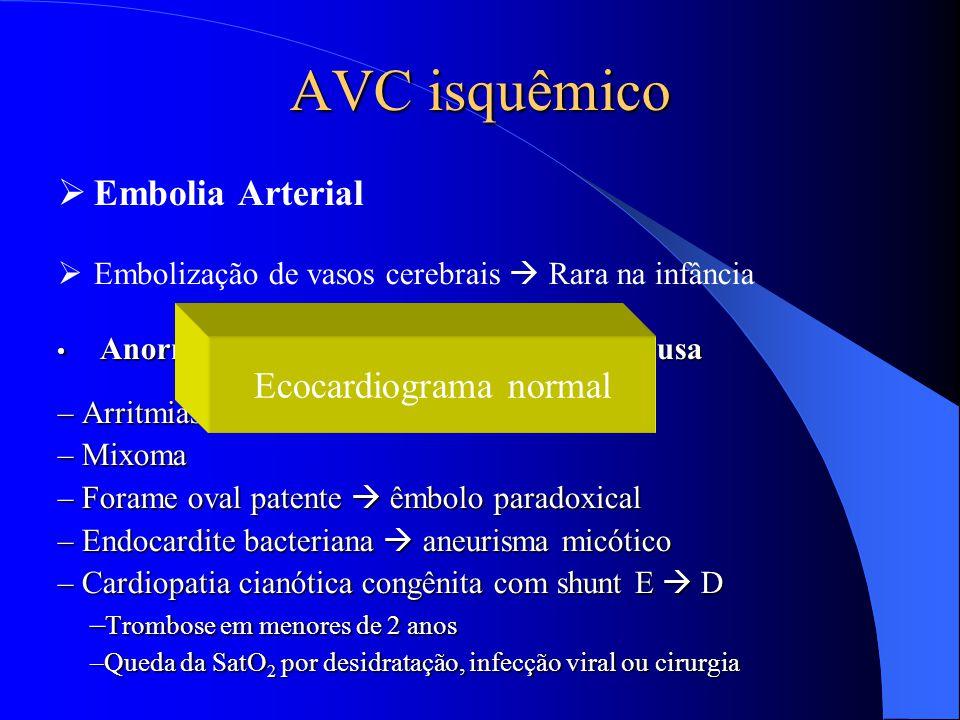 AVC isquêmico  Embolia Arterial  Embolização de vasos cerebrais  Rara na infância Anormalidades cardíacas  principal causa Anormalidades cardíacas