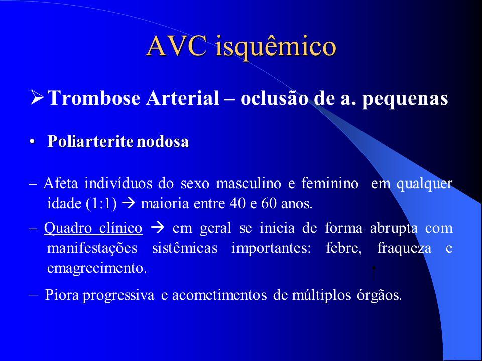 AVC isquêmico  Trombose Arterial – oclusão de a. pequenas Poliarterite nodosaPoliarterite nodosa – Afeta indivíduos do sexo masculino e feminino em q