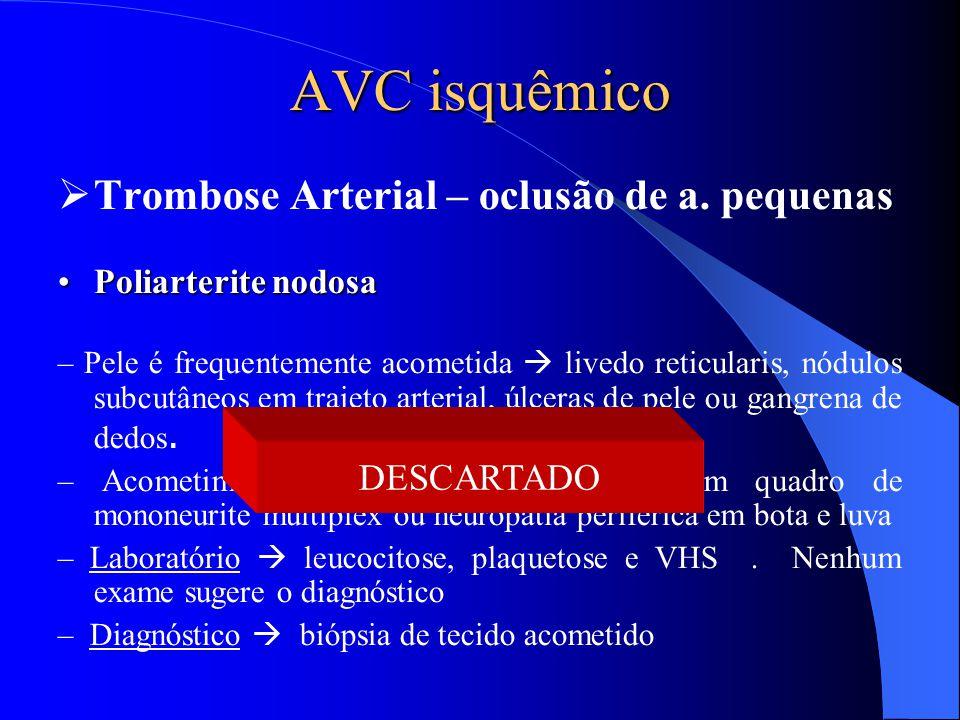 AVC isquêmico  Trombose Arterial – oclusão de a. pequenas Poliarterite nodosaPoliarterite nodosa – Pele é frequentemente acometida  livedo reticular