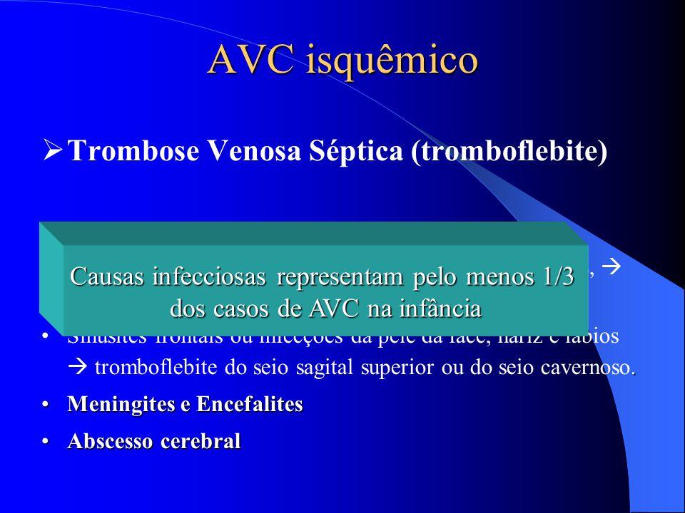 AVC isquêmico  Trombose Venosa Séptica (tromboflebite) Infecções retroorbitárias Complicação de otites médias e mastoidites purulentas,  seio transv