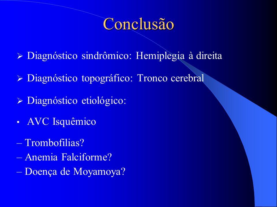 Conclusão  Diagnóstico sindrômico: Hemiplegia à direita  Diagnóstico topográfico: Tronco cerebral  Diagnóstico etiológico: AVC Isquêmico – Trombofi