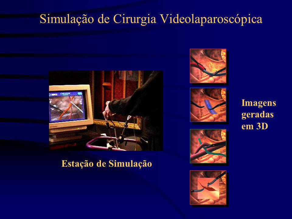Estação de Simulação Imagens geradas em 3D Simulação de Cirurgia Videolaparoscópica