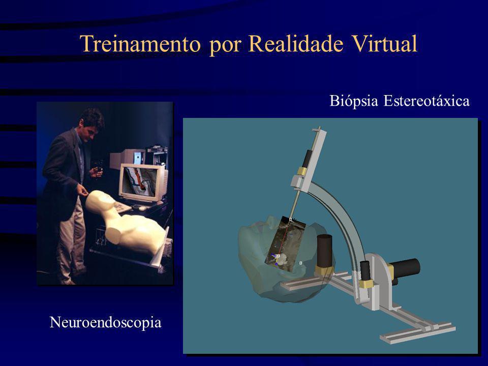Neuroendoscopia Biópsia Estereotáxica