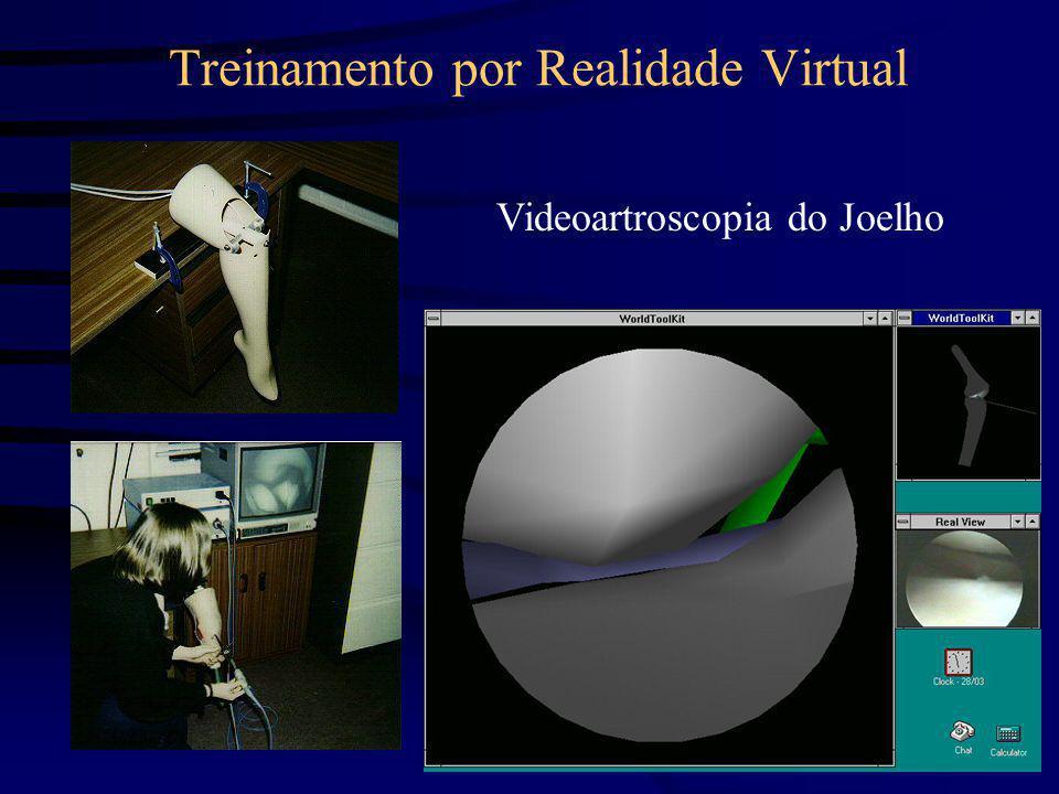 Treinamento por Realidade Virtual Videoartroscopia do Joelho