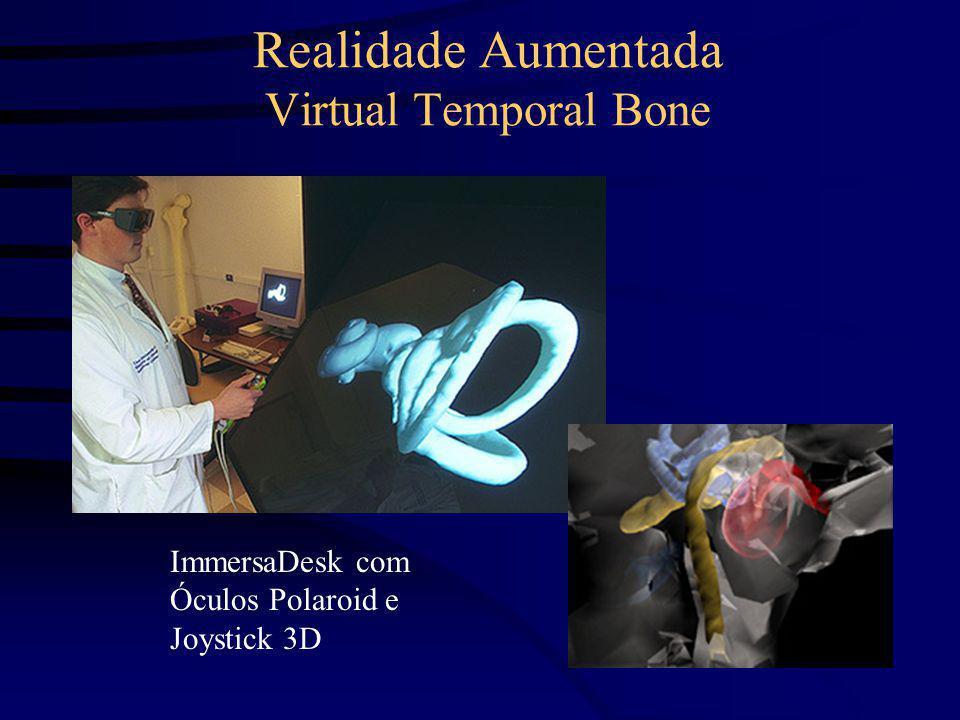 Realidade Aumentada Virtual Temporal Bone ImmersaDesk com Óculos Polaroid e Joystick 3D
