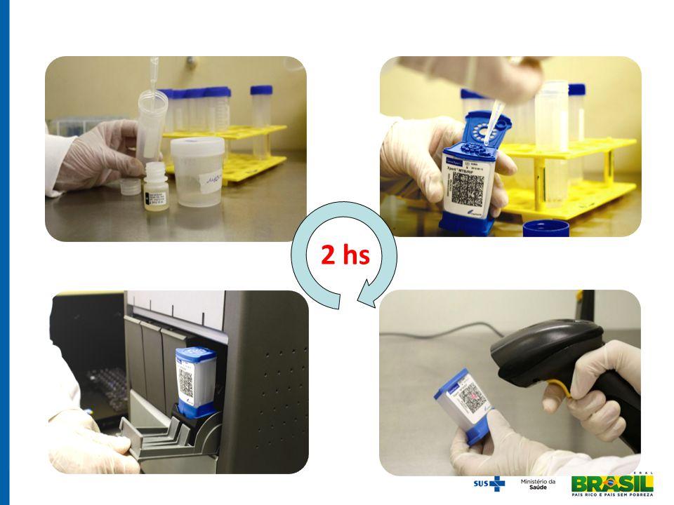 CONCLUSÕES TRM-TB aumenta confirmação laboratorial em 60% comparado à baciloscopia Detecção da resistência à RIF é uma vantagem Impacto no tempo para início do tratamento e na notificação (SINAN) Implantação fácil Estudo de Implementação do TRM-TB
