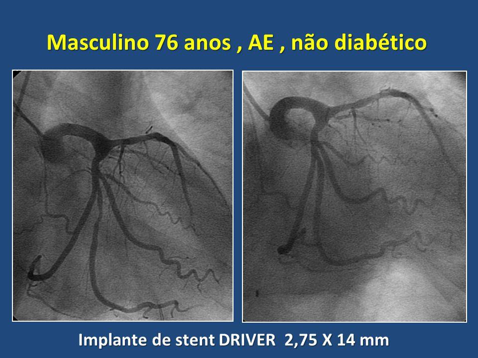 Masculino 76 anos, AE, não diabético Implante de stent DRIVER 2,75 X 14 mm