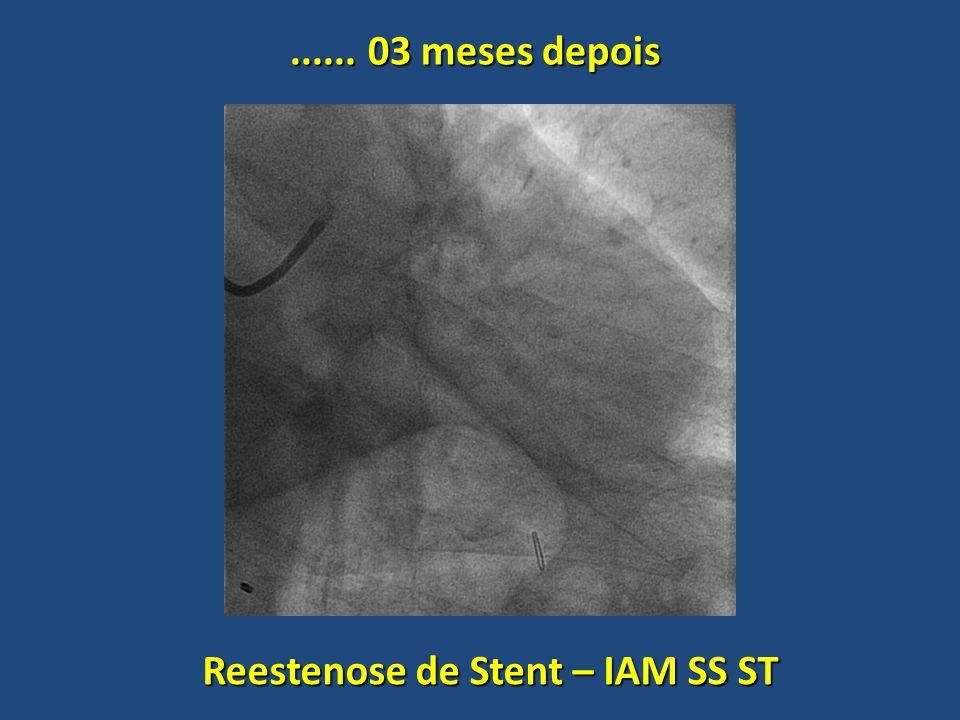 ...... 03 meses depois Reestenose de Stent – IAM SS ST