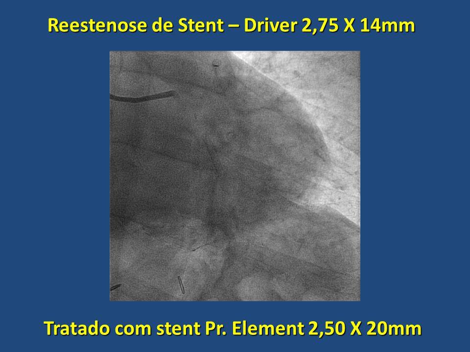 Reestenose de Stent – Driver 2,75 X 14mm Tratado com stent Pr. Element 2,50 X 20mm