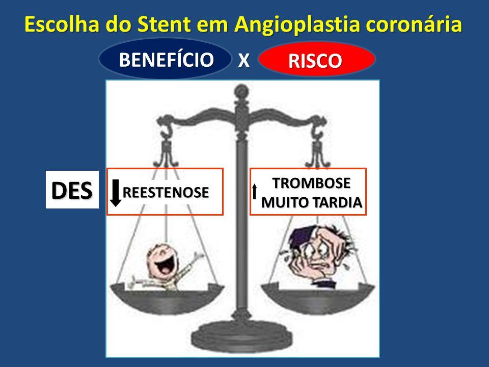Escolha do Stent em Angioplastia coronária BENEFÍCIO RISCO X REESTENOSE TROMBOSE MUITO TARDIA DES