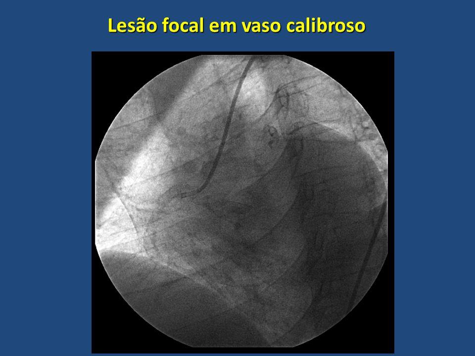 Lesão focal em vaso calibroso