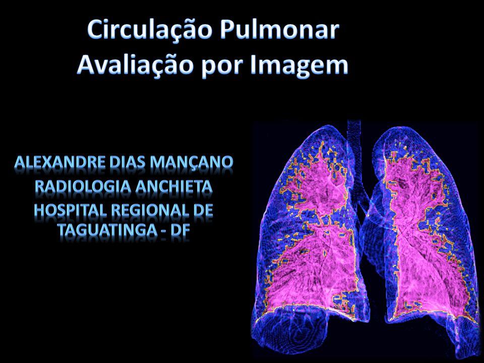 Tomografia Computadorizada – Angiotomografia -Diâmetro artéria pulmonar > 29mm -VPP – 95% -Especificidade – 89% -Diâmetro artéria pulmonar > Aorta -VPP – 95% -Especificidade – 90% Avaliação Parenquimatosa