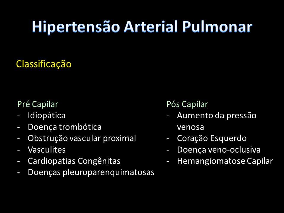 Classificação Pré Capilar -Idiopática -Doença trombótica -Obstrução vascular proximal -Vasculites -Cardiopatias Congênitas -Doenças pleuroparenquimato
