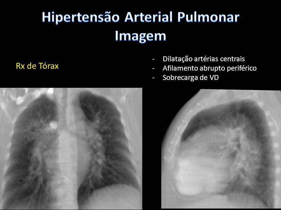 Rx de Tórax -Dilatação artérias centrais -Afilamento abrupto periférico -Sobrecarga de VD
