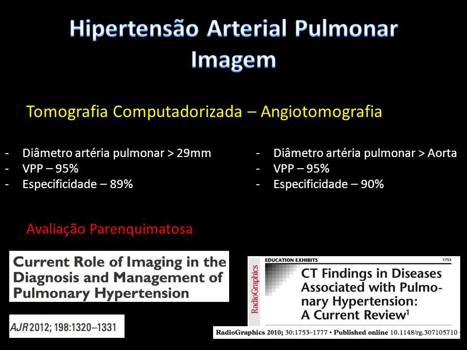 Tomografia Computadorizada – Angiotomografia -Diâmetro artéria pulmonar > 29mm -VPP – 95% -Especificidade – 89% -Diâmetro artéria pulmonar > Aorta -VP