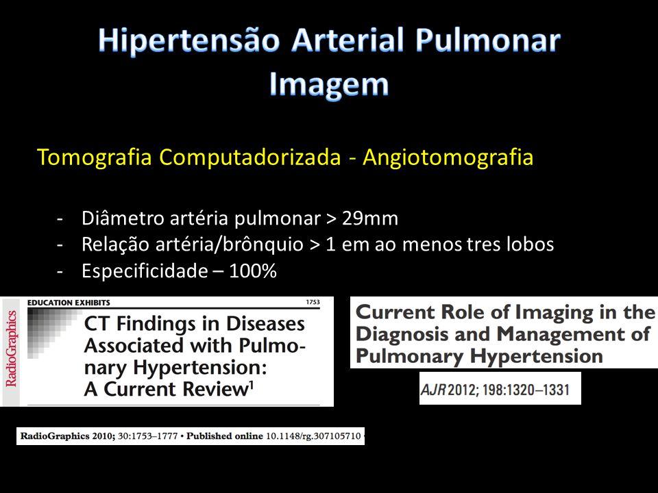 Tomografia Computadorizada - Angiotomografia -Diâmetro artéria pulmonar > 29mm -Relação artéria/brônquio > 1 em ao menos tres lobos -Especificidade –