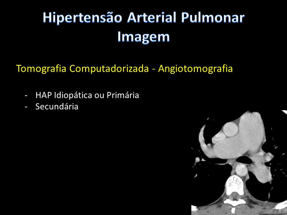 Tomografia Computadorizada - Angiotomografia -HAP Idiopática ou Primária -Secundária