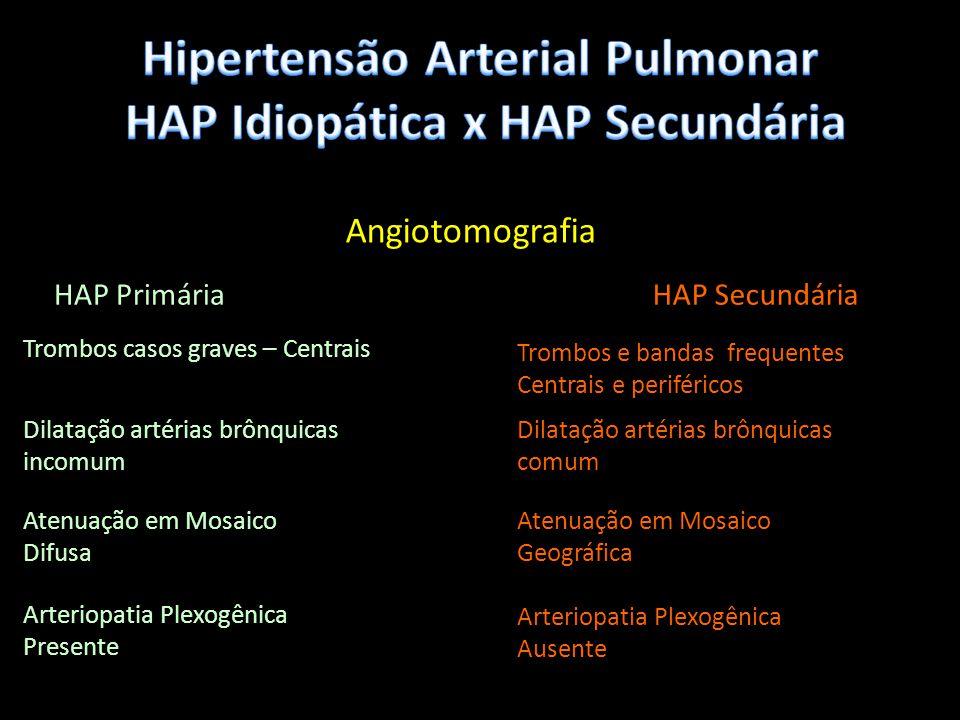 Angiotomografia HAP PrimáriaHAP Secundária Trombos casos graves – Centrais Trombos e bandas frequentes Centrais e periféricos Dilatação artérias brônq