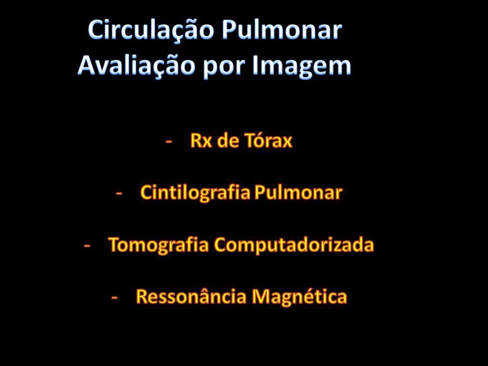 Indiretos - Parenquimatosos -Consolidação -Oligoemia -Atelectasias laminares