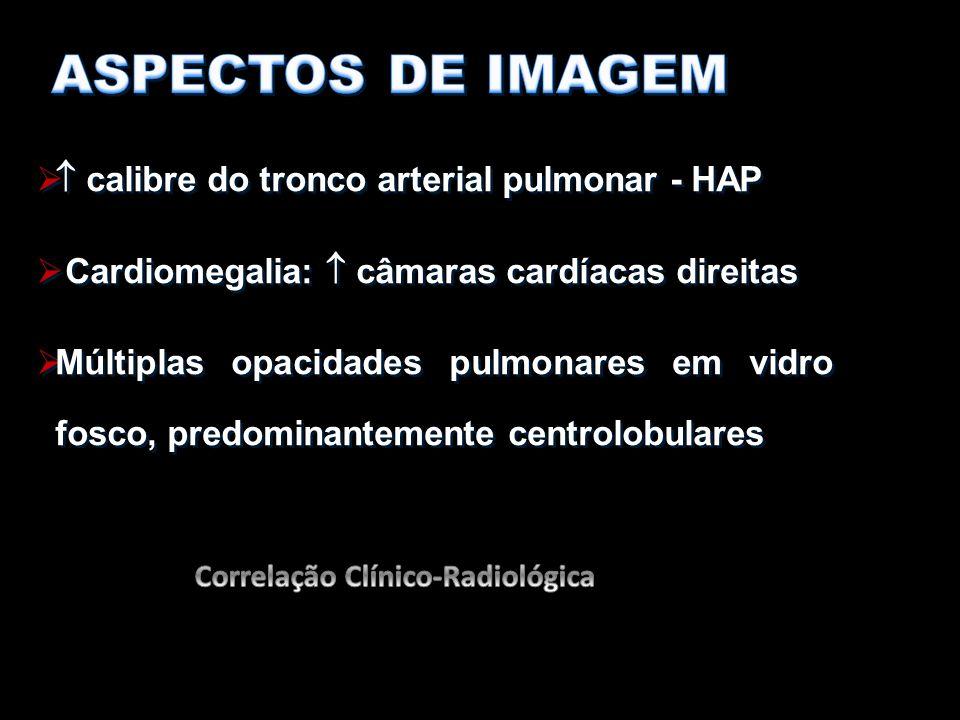   calibre do tronco arterial pulmonar - HAP  Cardiomegalia:  câmaras cardíacas direitas  Múltiplas opacidades pulmonares em vidro fosco, predomin