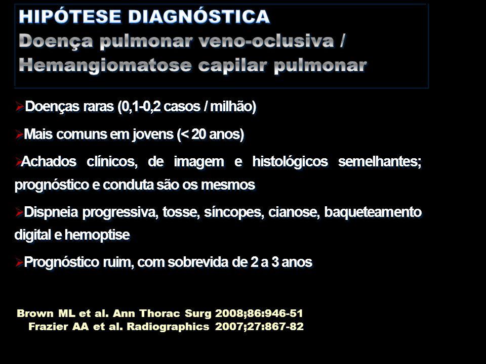  Doenças raras (0,1-0,2 casos / milhão)  Mais comuns em jovens (< 20 anos)  Achados clínicos, de imagem e histológicos semelhantes; prognóstico e c