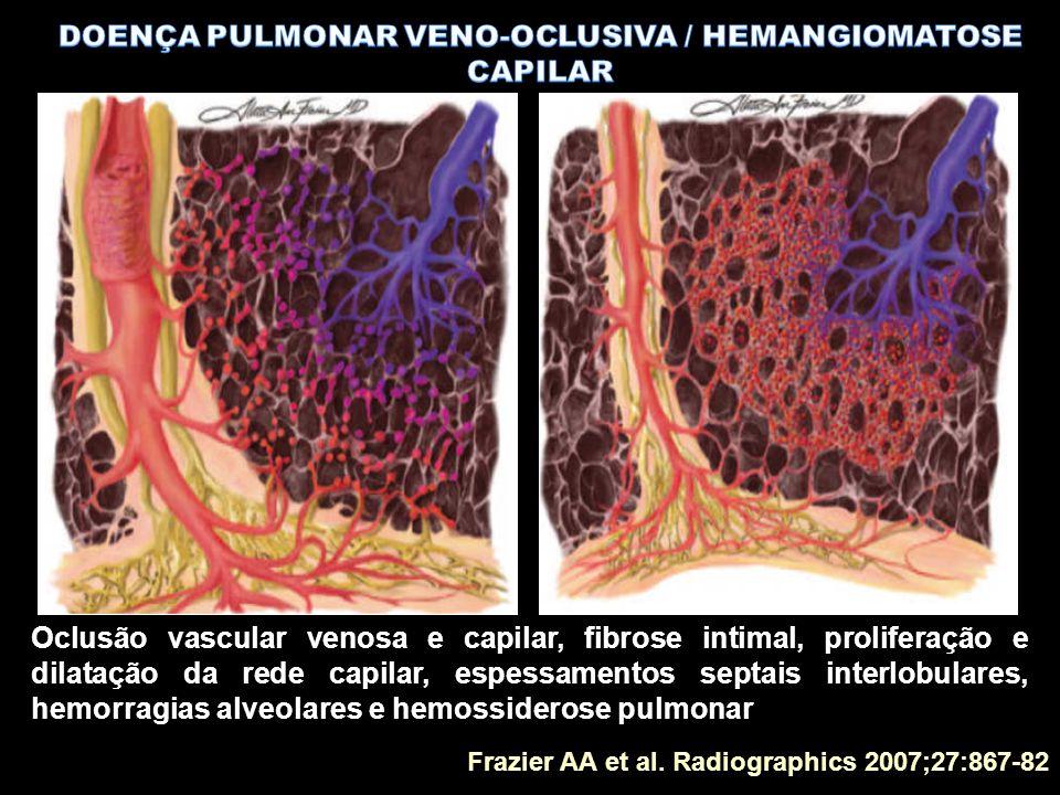 Frazier AA et al. Radiographics 2007;27:867-82 Oclusão vascular venosa e capilar, fibrose intimal, proliferação e dilatação da rede capilar, espessame