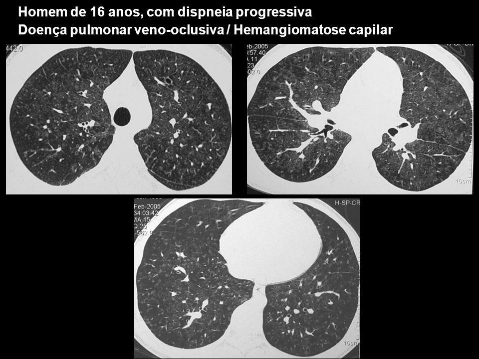 Homem de 16 anos, com dispneia progressiva Doença pulmonar veno-oclusiva / Hemangiomatose capilar