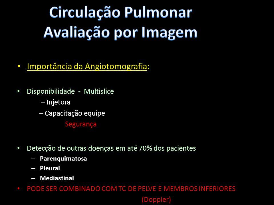 Importância da Angiotomografia: Disponibilidade - Multislice – Injetora – Capacitação equipe Segurança Detecção de outras doenças em até 70% dos pacie