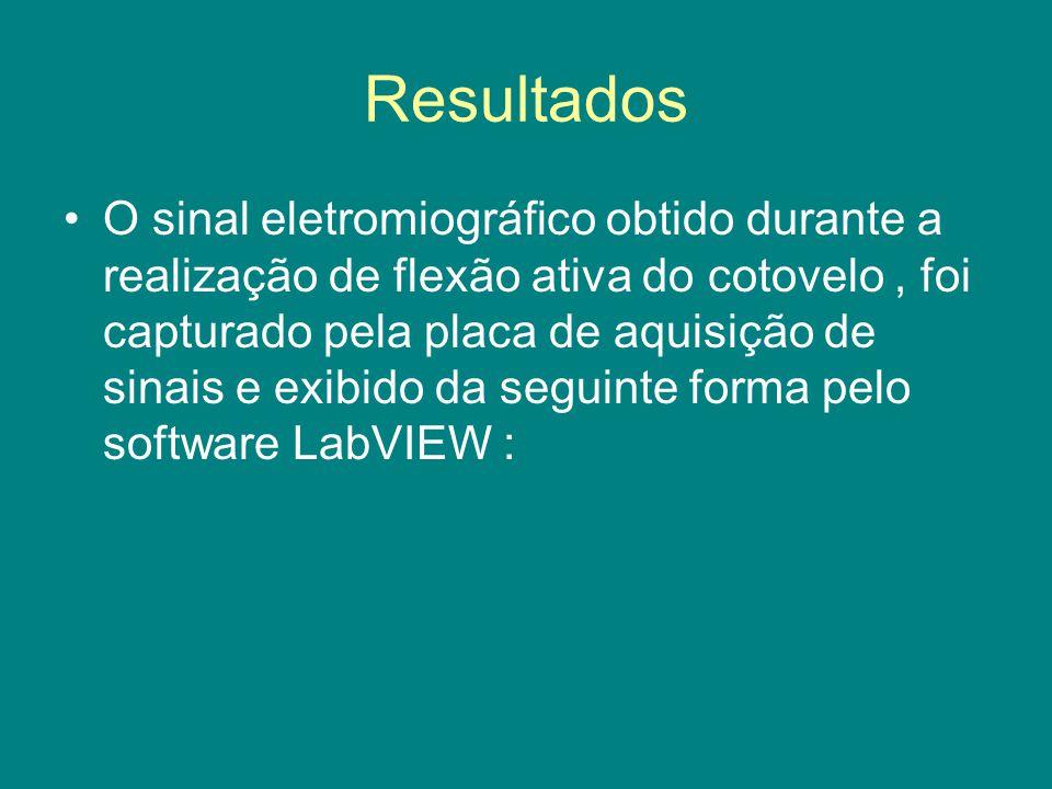 Resultados O sinal eletromiográfico obtido durante a realização de flexão ativa do cotovelo, foi capturado pela placa de aquisição de sinais e exibido da seguinte forma pelo software LabVIEW :