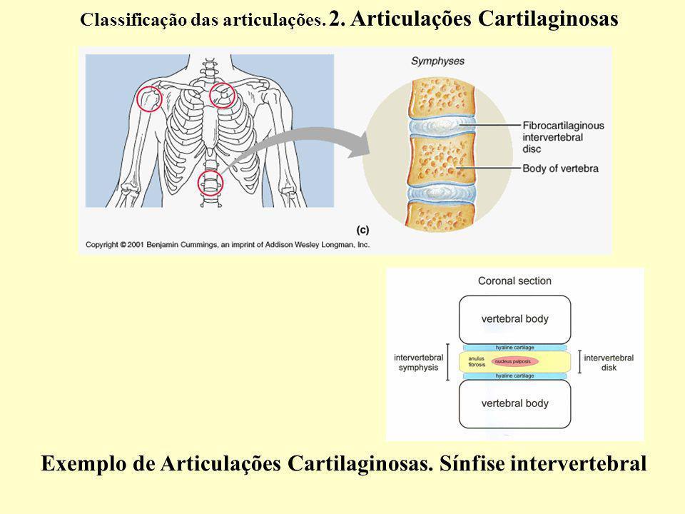 Exemplo de Articulações Cartilaginosas.Sínfise intervertebral Classificação das articulações.