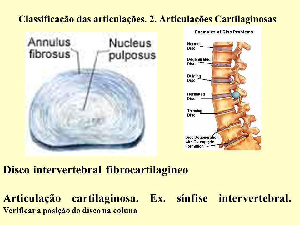 Articulação cartilaginosa.Ex. sínfise intervertebral.