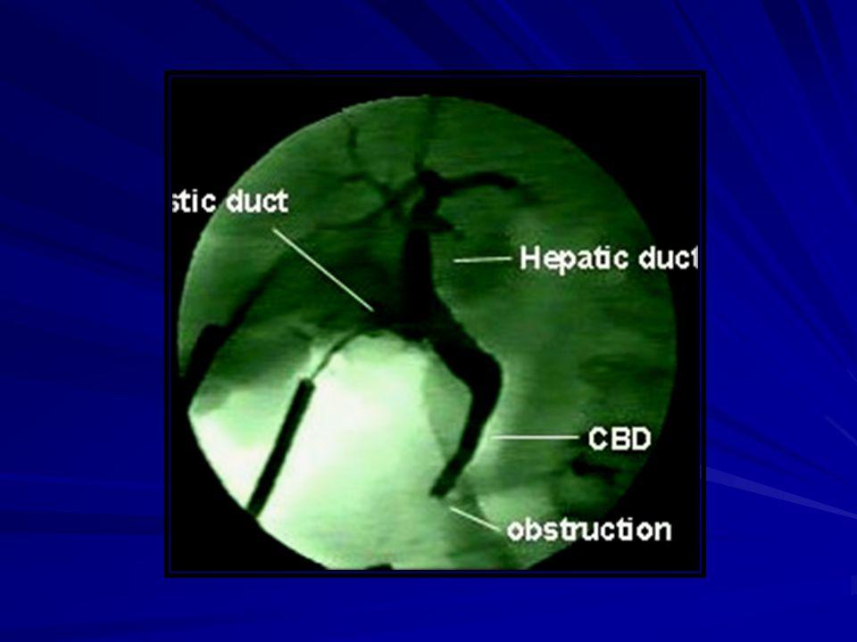 CLASSIFICAÇÃO DA ISS CONTAMINADA Feridas traumáticas recentes e abertas; Feridas traumáticas recentes e abertas; Contaminação grosseira durante cirurg