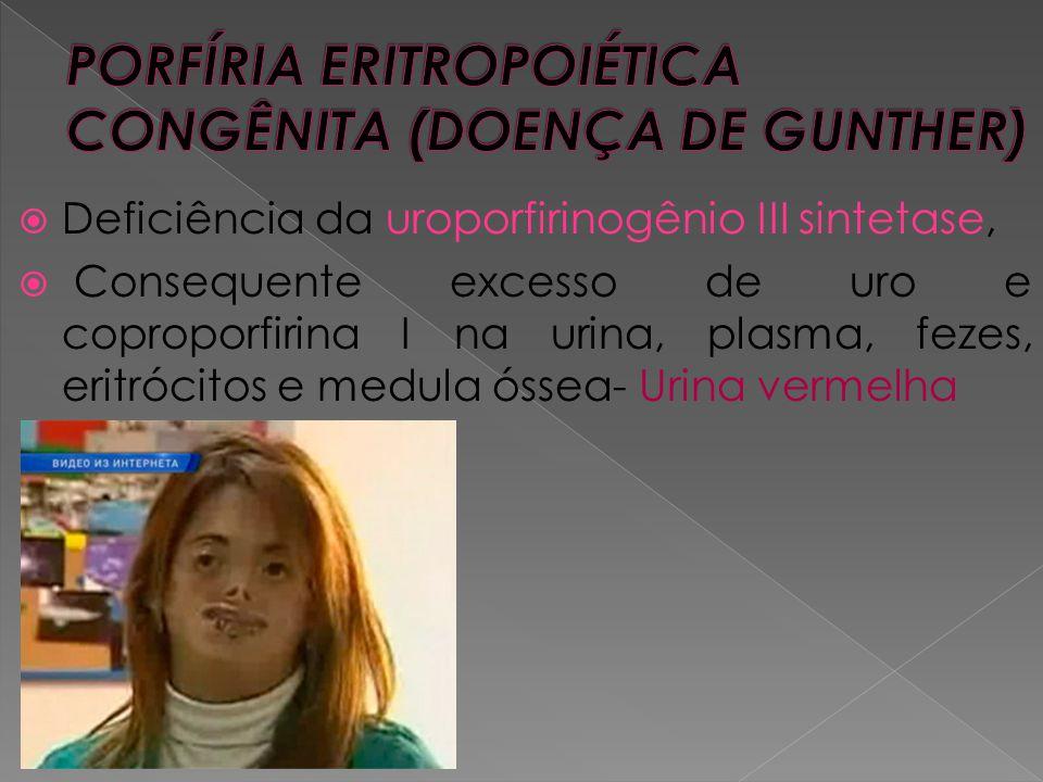  Deficiência da uroporfirinogênio III sintetase,  Consequente excesso de uro e coproporfirina I na urina, plasma, fezes, eritrócitos e medula óssea-