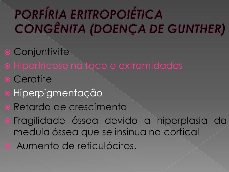  Conjuntivite  Hipertricose na face e extremidades  Ceratite  Hiperpigmentação  Retardo de crescimento  Fragilidade óssea devido a hiperplasia d