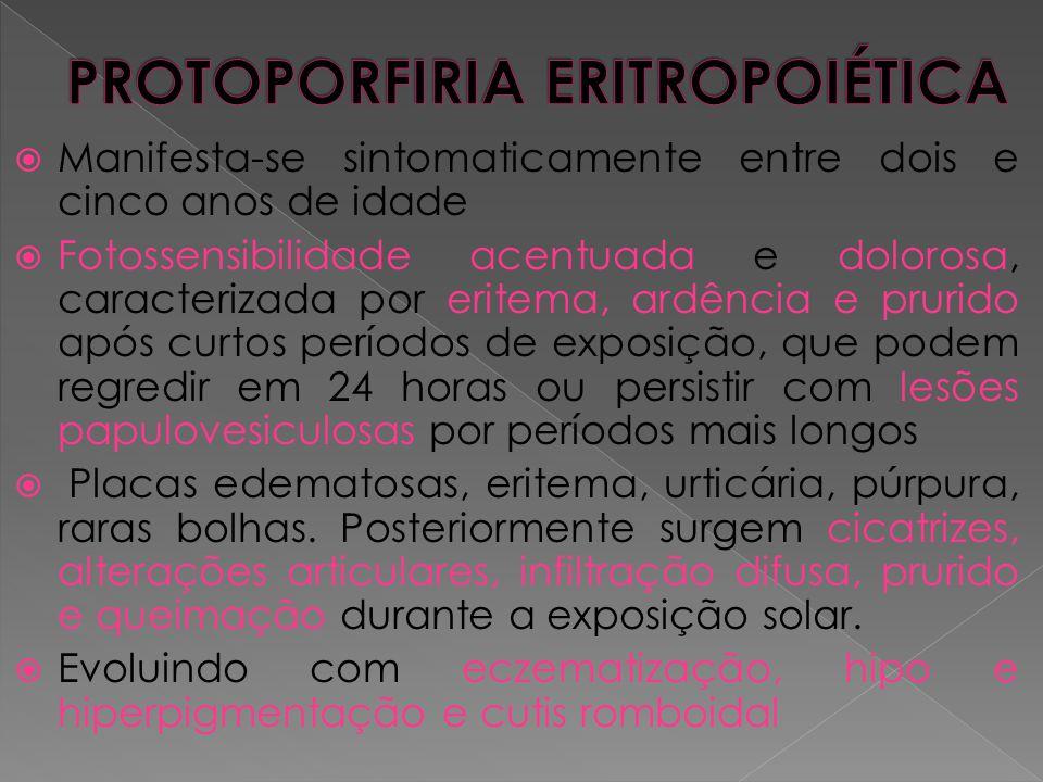  Manifesta-se sintomaticamente entre dois e cinco anos de idade  Fotossensibilidade acentuada e dolorosa, caracterizada por eritema, ardência e prur