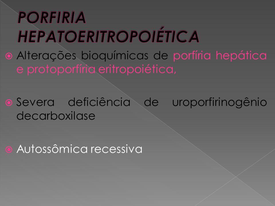  Alterações bioquímicas de porfíria hepática e protoporfíria eritropoiética,  Severa deficiência de uroporfirinogênio decarboxilase  Autossômica re