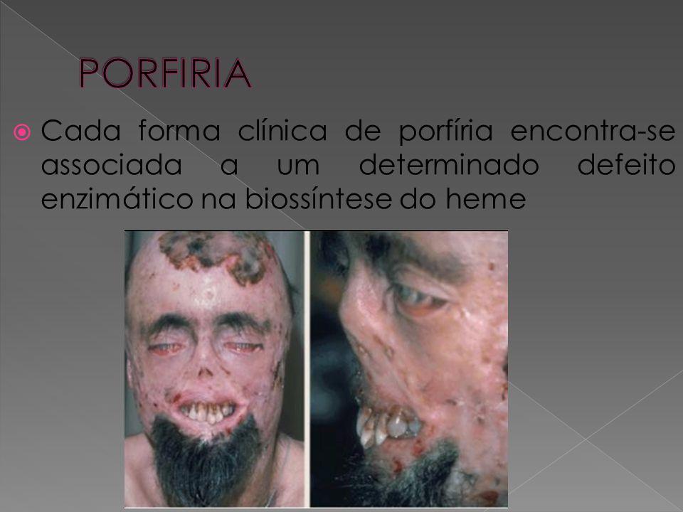  Esplenomegalia  Anemia hemolítica  Trombocitopenia  Fotossensibilidade  Alopecia cicatricial  Onicólise  Coiloníquia  Melanoníquia