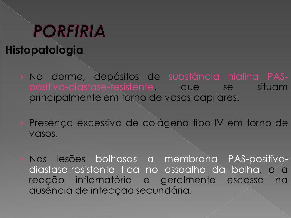 Histopatologia › Na derme, depósitos de substância hialina PAS- positiva-diastase-resistente, que se situam principalmente em torno de vasos capilares