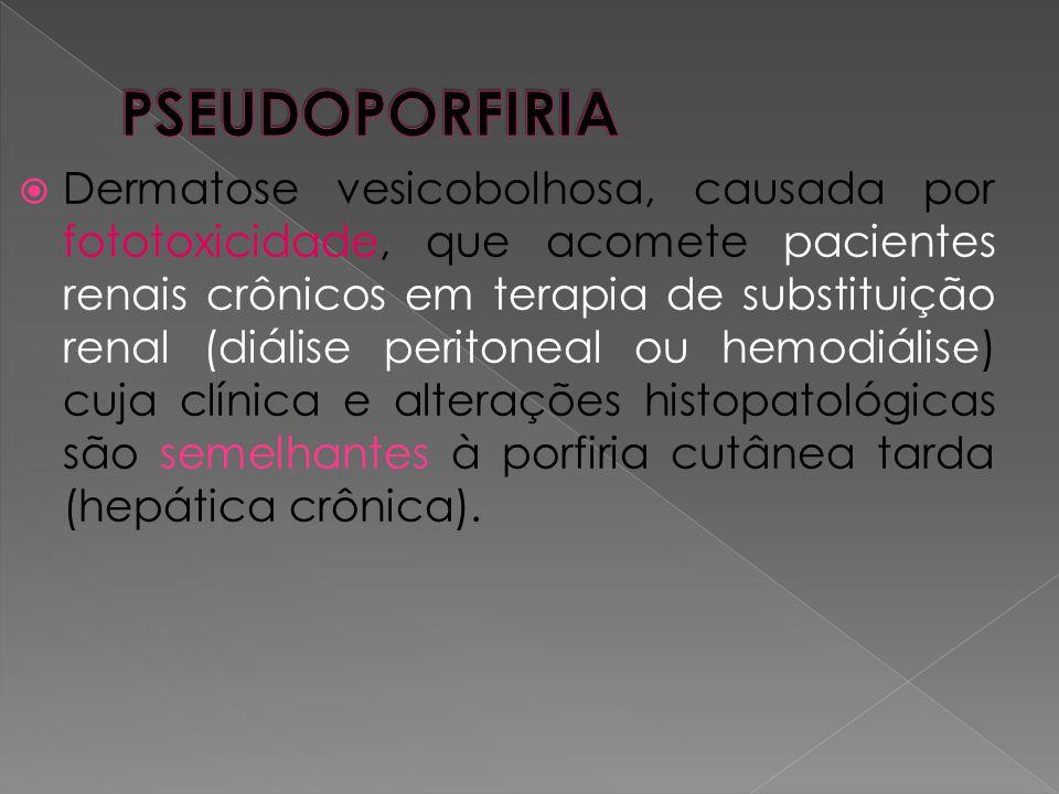  Dermatose vesicobolhosa, causada por fototoxicidade, que acomete pacientes renais crônicos em terapia de substituição renal (diálise peritoneal ou h