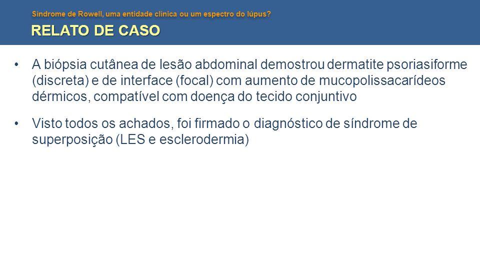 Síndrome de Rowell, uma entidade clínica ou um espectro do lúpus? RELATO DE CASO A biópsia cutânea de lesão abdominal demostrou dermatite psoriasiform