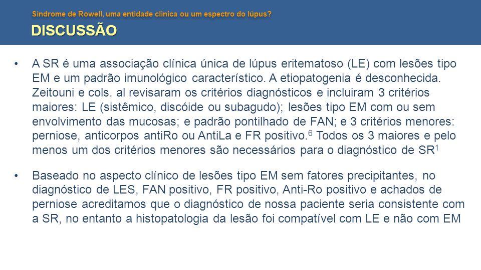 Síndrome de Rowell, uma entidade clínica ou um espectro do lúpus? DISCUSSÃO A SR é uma associação clínica única de lúpus eritematoso (LE) com lesões t