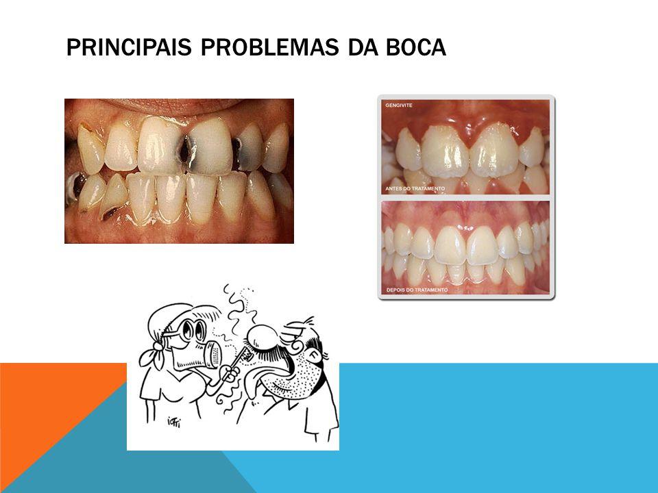 PRINCIPAIS PROBLEMAS DA BOCA